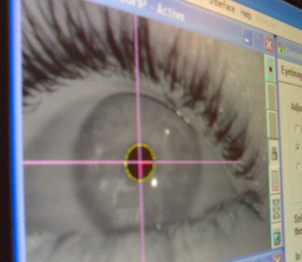 eye-tracker