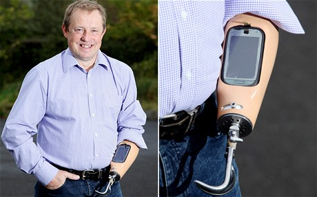 pro 2036922c A mans prosthetic arm becomes a dock for his smartphone