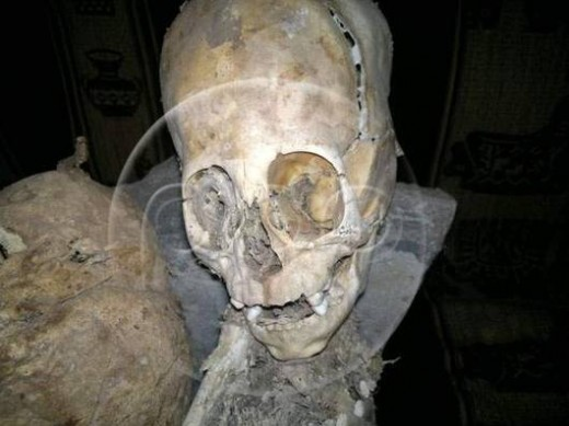 peru alien 3 520x389 Scientists think this triangular skull belongs to an alien