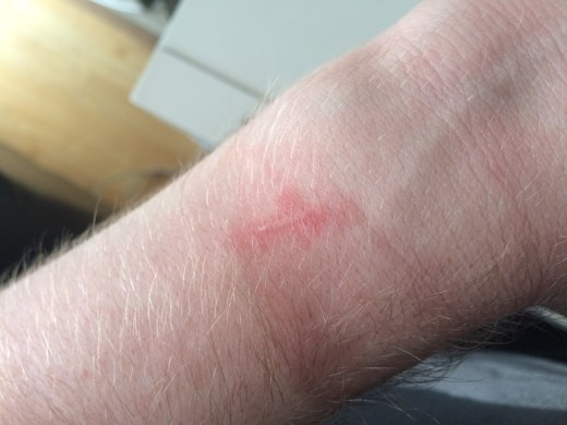 What happens when you don't close the Gameband clasp carefully.
